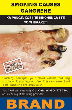 Image of the Smoking causes gangrene cigarette packet design - back