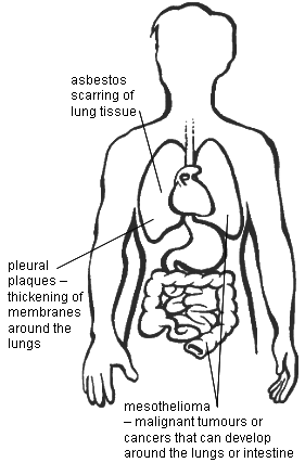 Diagram showing the main diseases related to asbestos