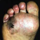 Photo of what looks like a dark brown stain on the sole of the foot.