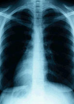 X-ray image of the lungs.