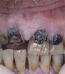 Photo of someone with some teeth that have been broken and with heavy staining on the top teeth.