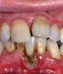 Photo of someone with periodontitis. Their gums are red and inflammed, their teeth look lose, and under some teeth you can see the gum being destroyed.